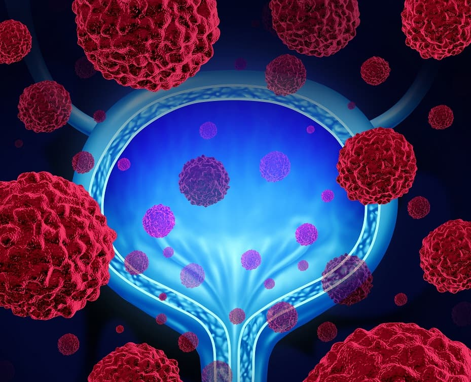 Avelumab-therapy-to-treat-bladder-cancer-admac