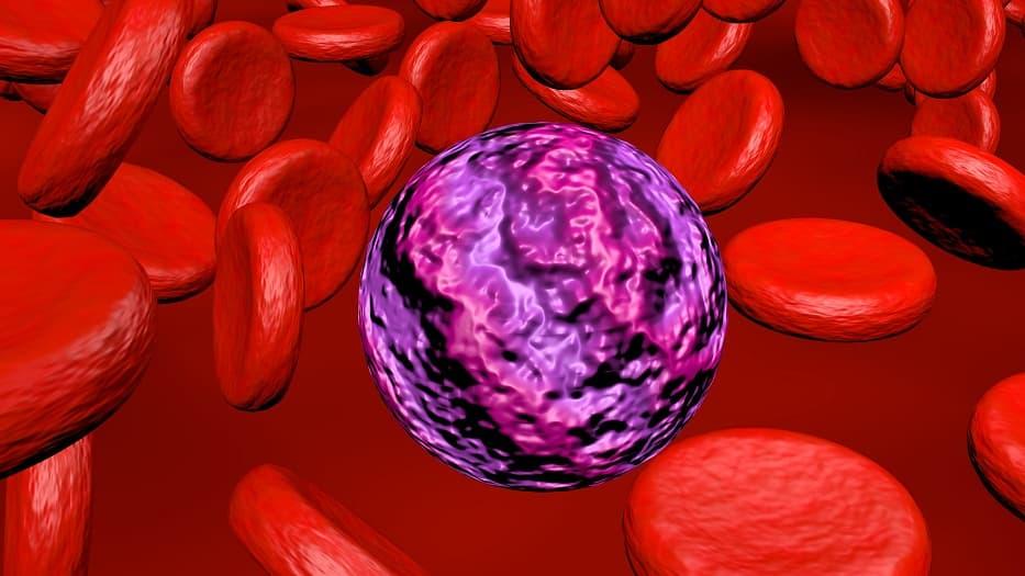 Gemtuzumab ozogamicin receives FDA-approval for CD33-positive acute myeloid leukemia in pediatrics