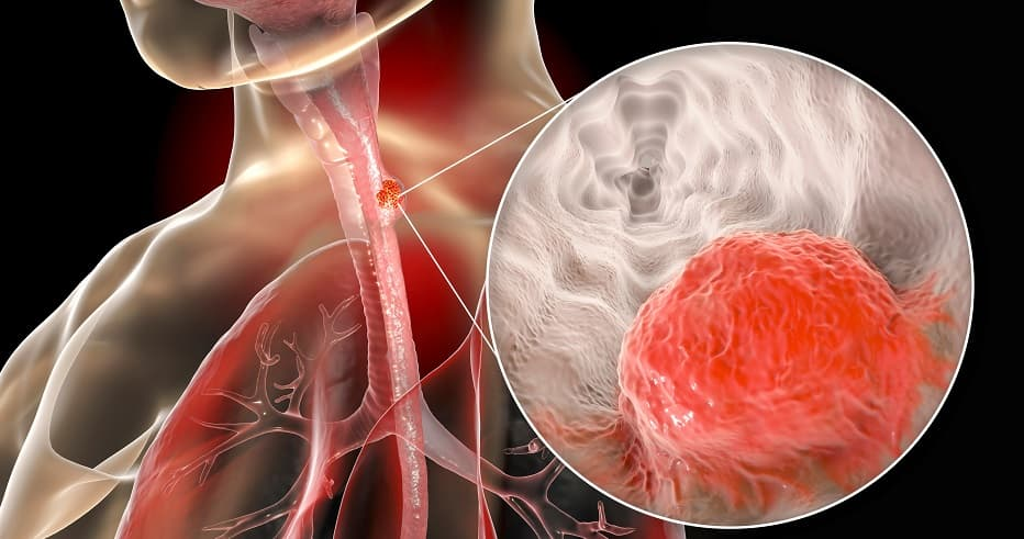 Nivolumab receives FDA approval for esophageal squamous cell carcinoma