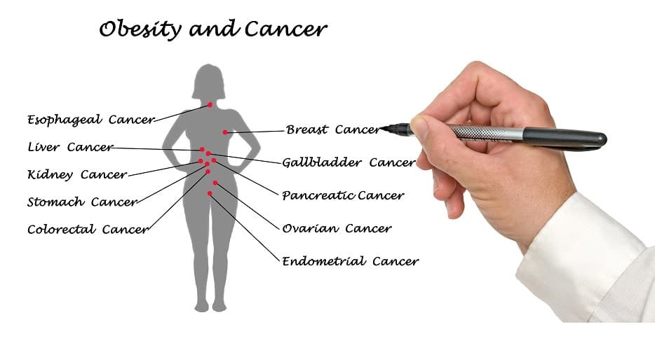Obesity and cancer: How deleterious is the relationship?