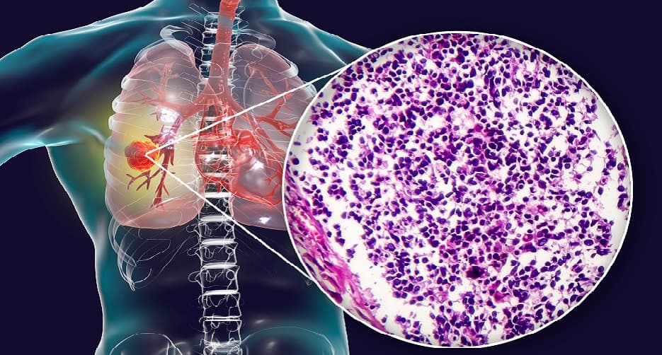 Pyrotinib could be the choice of drug in chemotherapy treated HER2-mutant NSCLC patients