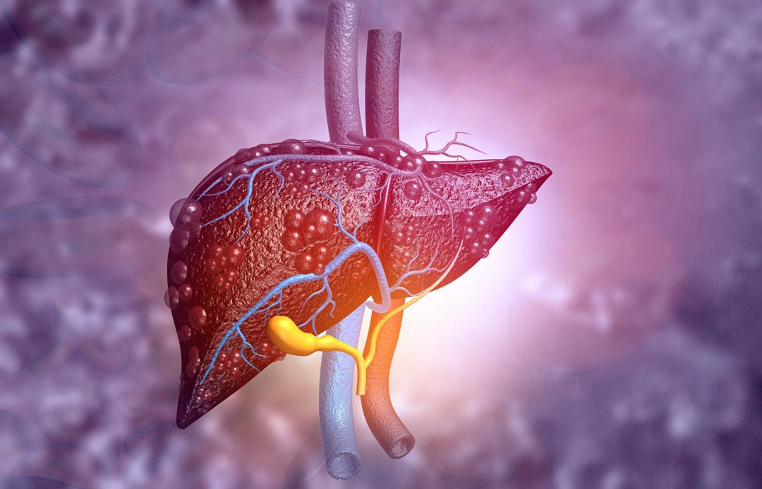 Natural ways to prevent liver cancer