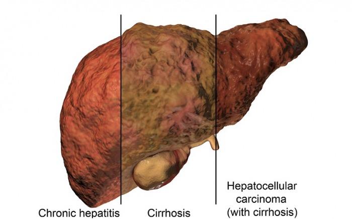 Nivolumab-vs.-Sorafenib-for-hepatocellular-carcinoma-admac