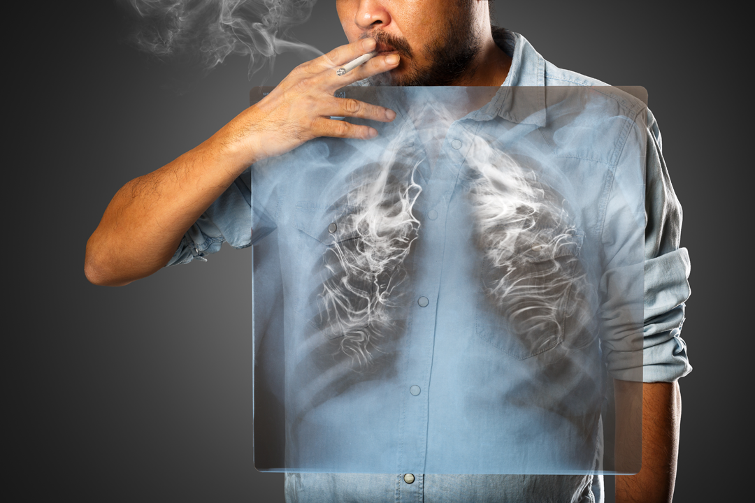 Serious effects of Smoking in increasing Lung Cancer Risk