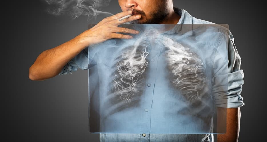 smoking-and-lung-cancer-admac