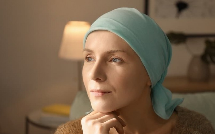 Hair-loss-and-cancer-admac-oncology