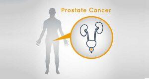 Abiraterone Acetate-Prednisone and Enzalutamide for Prostate Cancer