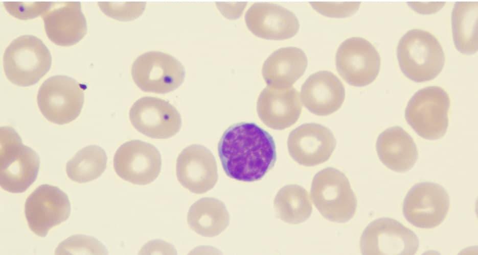 Axicabtagene ciloleucel receives FDA approval to treat follicular lymphoma