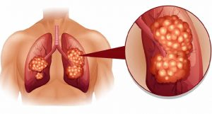 Superfoods-that-can-reduce-Lung-Cancer-Risk-admac