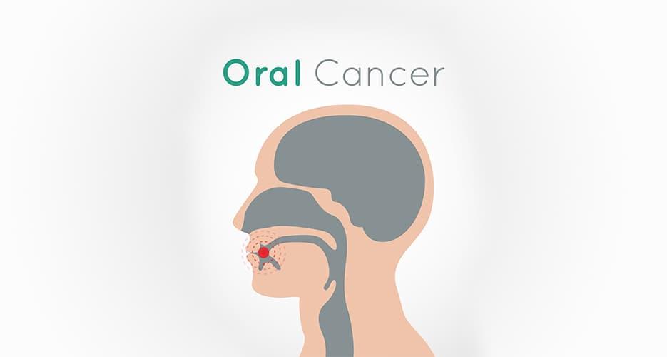 10 Ways to Prevent Oral Cancer Risk