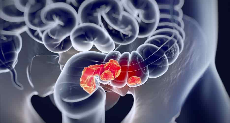Top 12 Natural Remedies to Prevent Colorectal Cancer