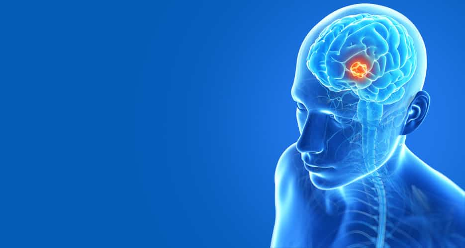Brain Tumor: What are the various risk factors?