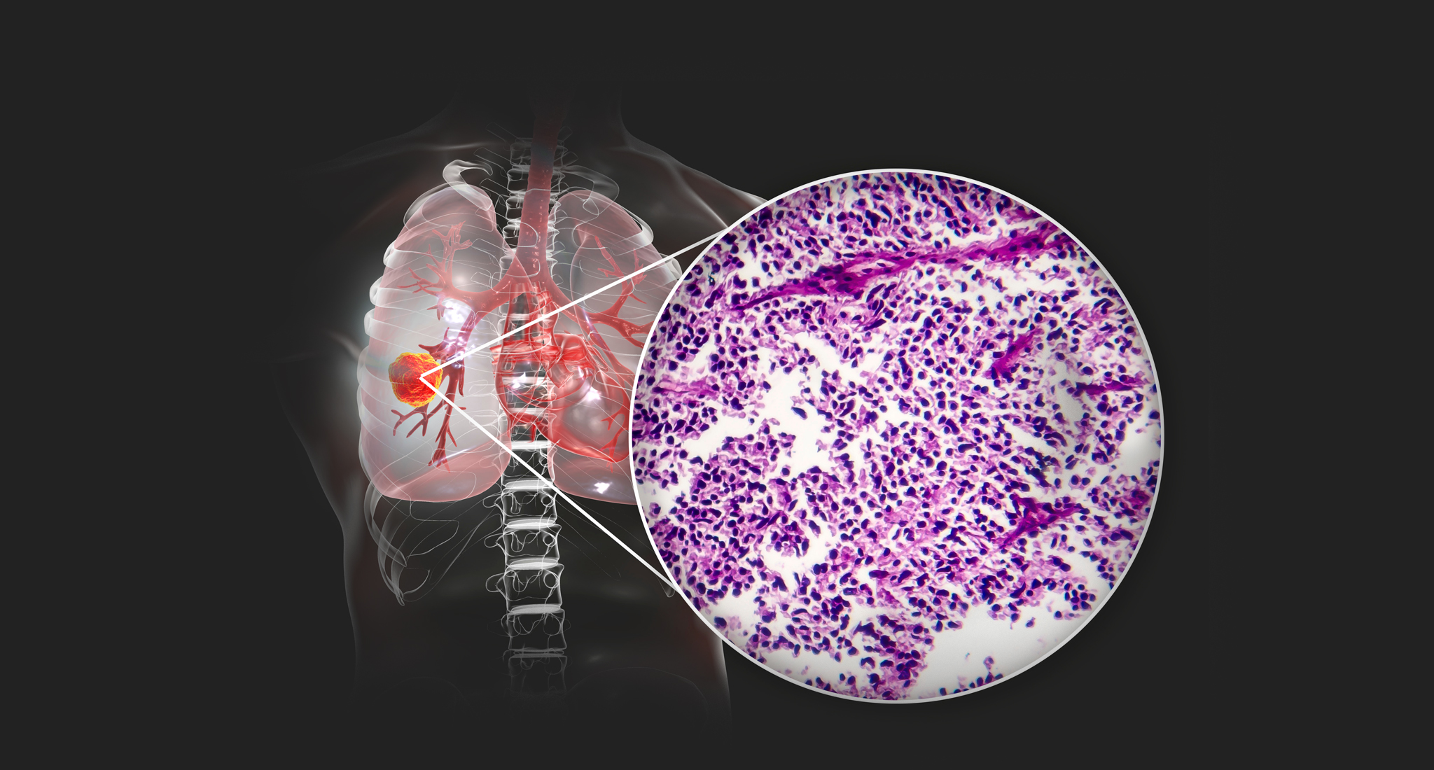 KRAS mutated NSCLC, possible to treat with Sotorasib
