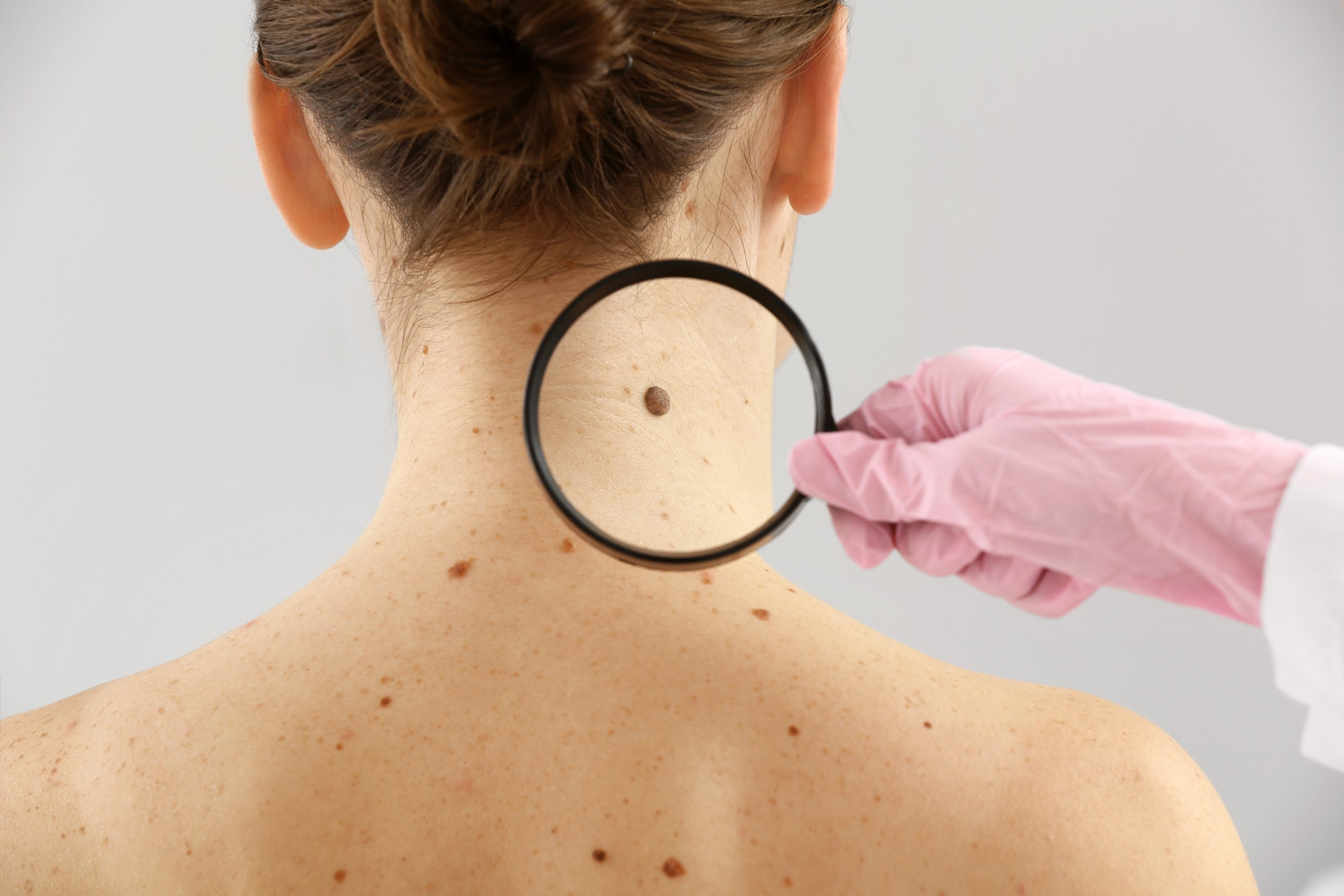 9 Common skin Cancer Myths you should aware of