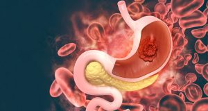Pembrolizumab-receives-FDA-accelerated-approval-to-treat-HER2-positive-gastric-cancer