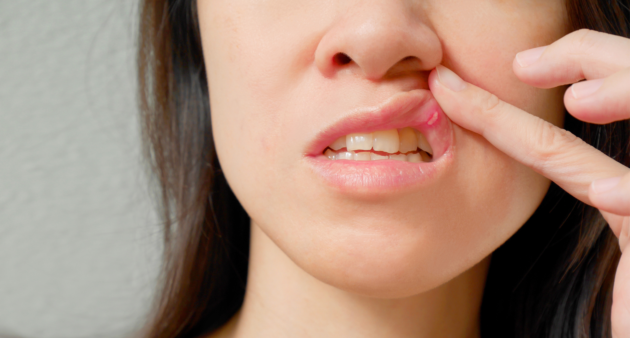 5 tips for managing mouth sores in cancer patients