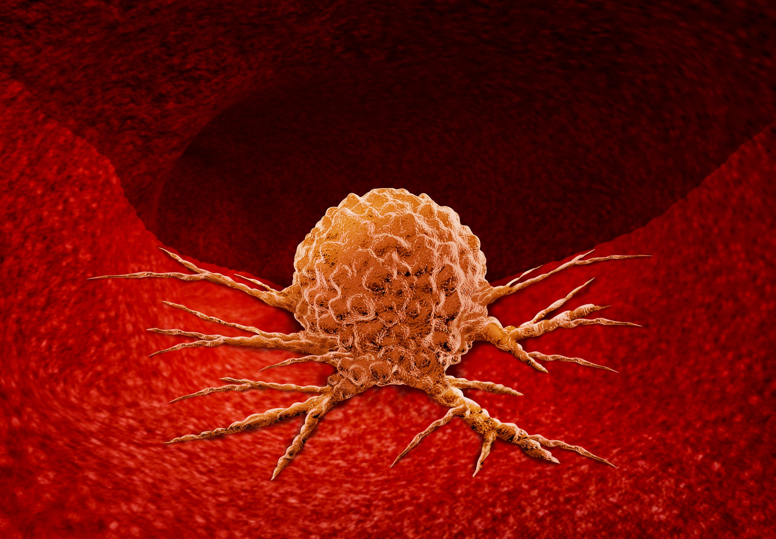 FDA approved dostarlimab for dMMR solid tumors