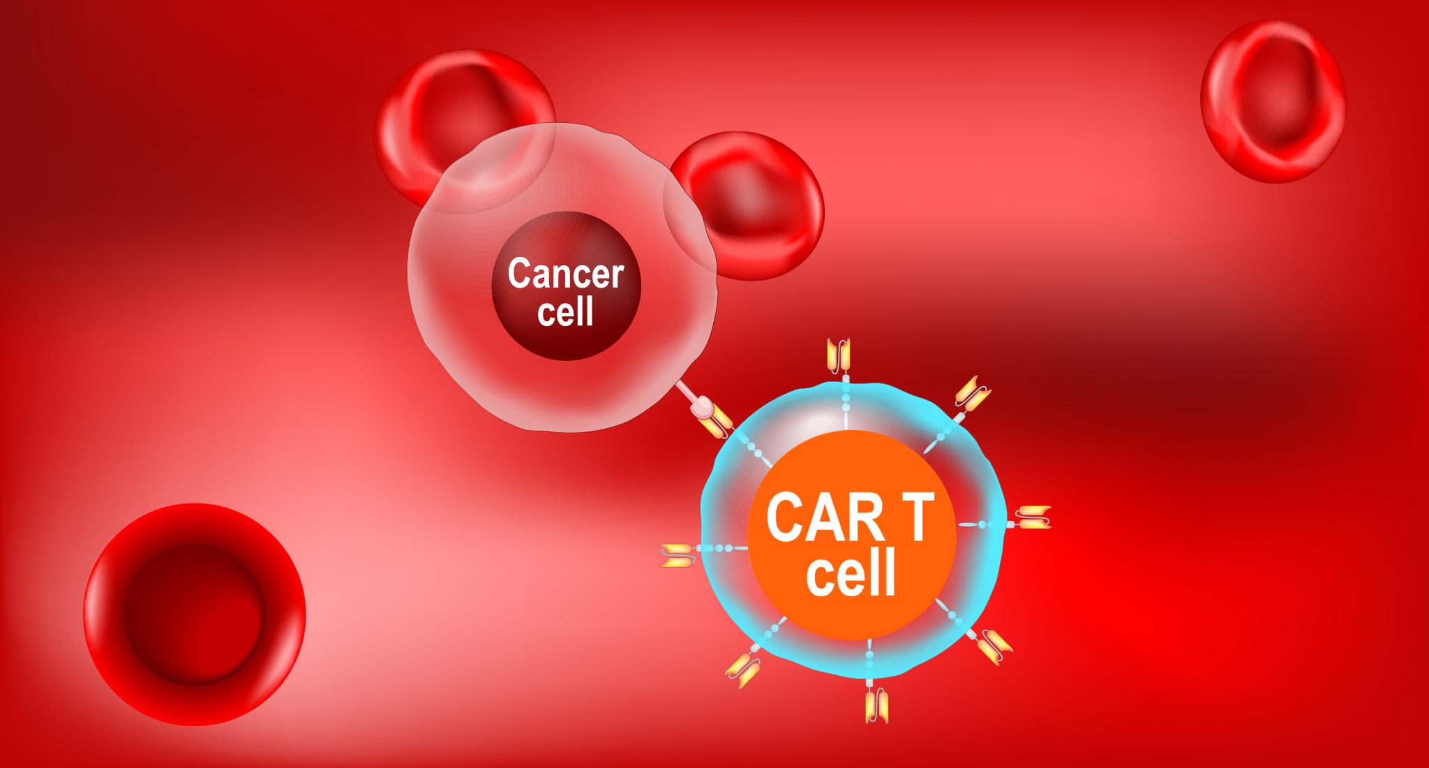 CAR T cell therapy- Reprogramming T cells to fight cancer