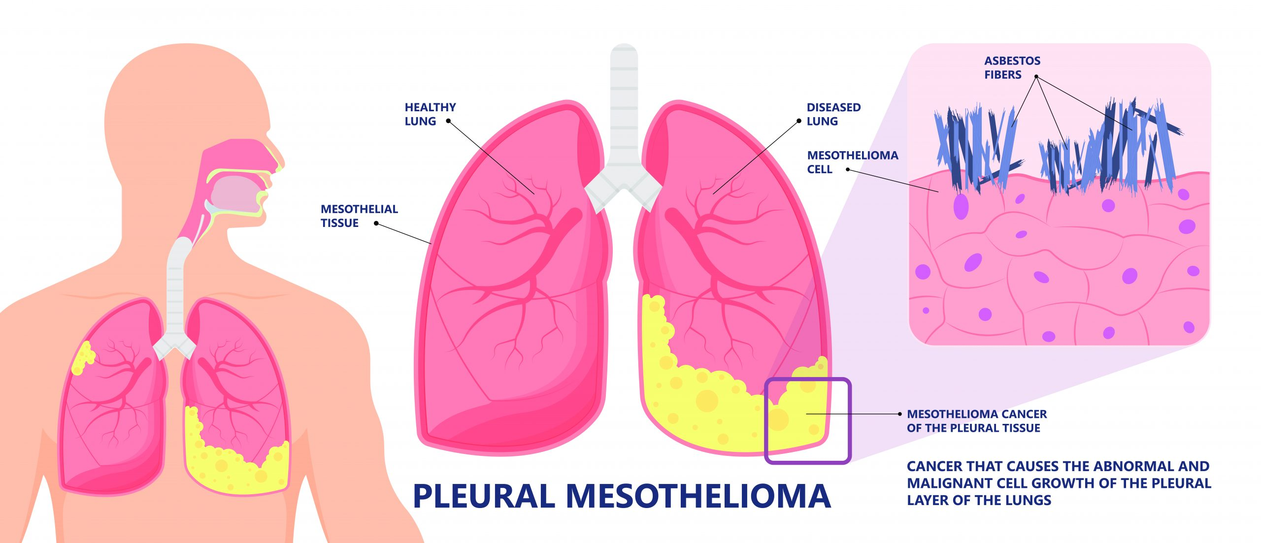 Gemcitabine + ramucirumab effective for pleural mesothelioma